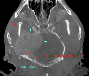 March 2018 Sonopath Case Of The Month: Agressive Brain Lesion in a 4-Year-Old FS Mixed Breed Canine