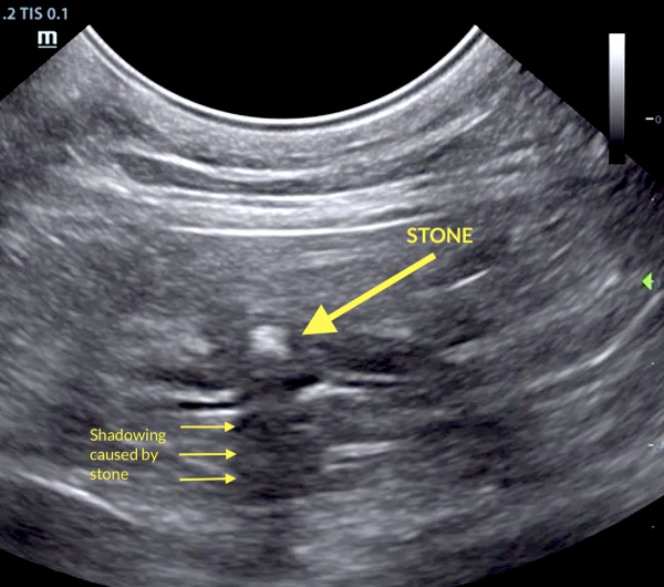 Post-Hepatic Obstruction By A Duodenal Papilla Calculus In A 9-Year-Old FS DSH Cat: Sonopath Case Of the Month July 2019